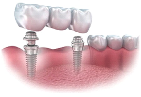 implant dentistry in Orland Park